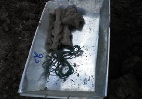 Xương ống chân và dây trói bằng chỉ cước xanh. Và có cả sợi dây nịt bằng vải dù mặc dù cái đầu dây nịt đã rỉ sét