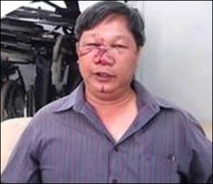 Anh Đinh Quang Tuyến.