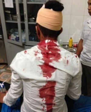 Phóng viên Dân Luận bị tấn công khi đi lấy tin ở vùng Biển miền Trung.  (Ảnh: Dân Luận)
